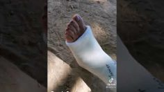 Tiktok Videos perfect leg cast SLC