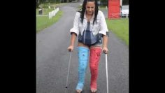 Double long leg cast in crutches