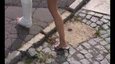 SLWC – Beautiful casted leg
